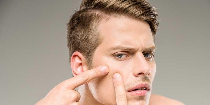 Brufoli e acne, pelle grassa e come combatterli. Le cose da sapere