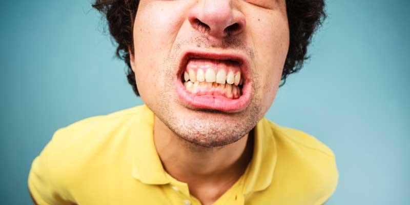 Sbiancamento dei denti. Efficacia e potenziali rischi dello sbiancamento dei denti