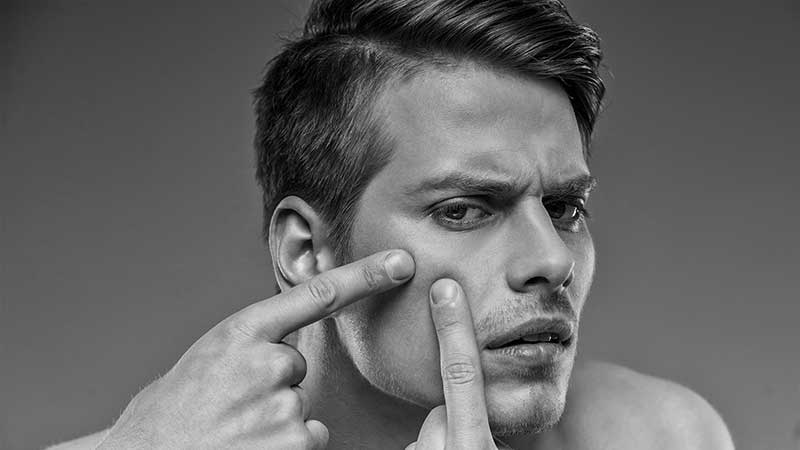 Acne, cause e trattamenti. Come si cura l'acne e perché viene l'acne?