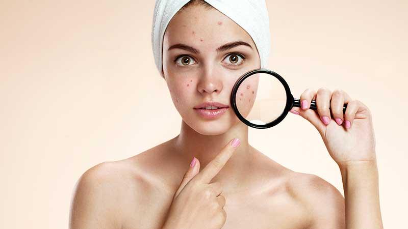 Le cicatrici da acne. Perché si formano, come si trattano. E come fare per prevenirne la formazione