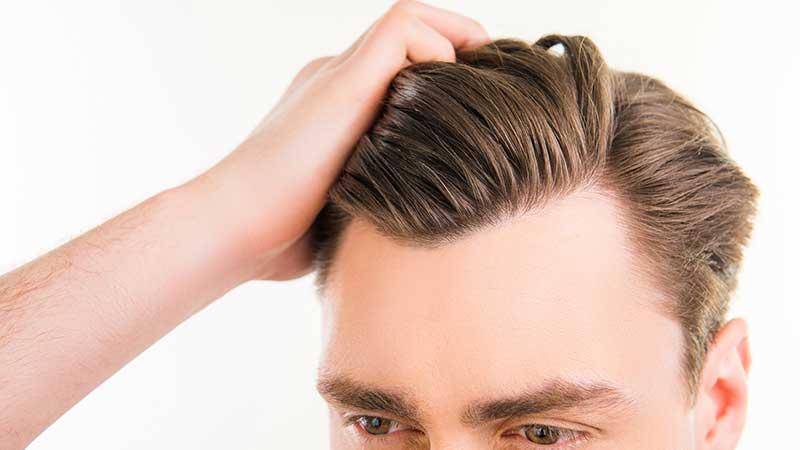 Forfora e dermatiti del cuoio capelluto. Come combattere la forfora e le dermatiti del cuoio capelluto